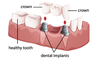 dental implants in queens